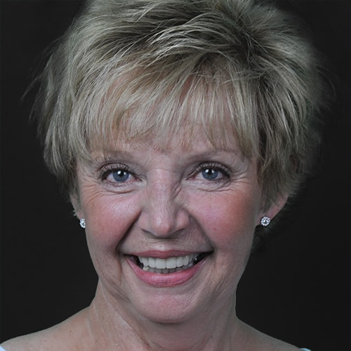 A woman smiles to show how CEREC crowns which are offered as part of our Fargo cosmetic dentistry enhance your smile.