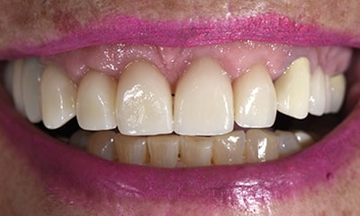 Closeup before and after photos picture of Bev for you to compare cosmetic dentists in Fargo, ND