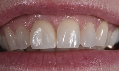 Closeup before and after photos picture of Colleen for you to compare cosmetic dentists in Fargo, ND