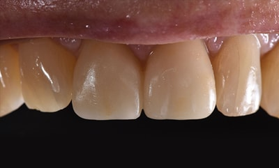 Closeup before and after photos picture of Ron for you to compare cosmetic dentists in Fargo, ND