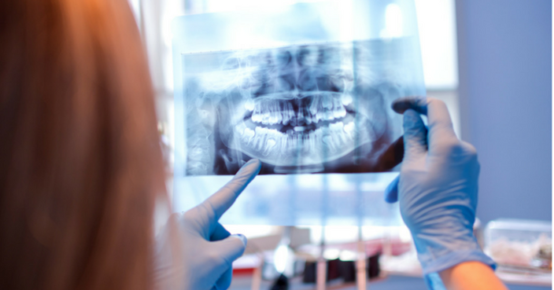 A dentist holding up a dental xray - Are dental xrays safe?