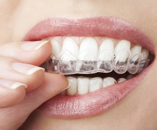 Invisalign fitted over straight beautiful teeth
