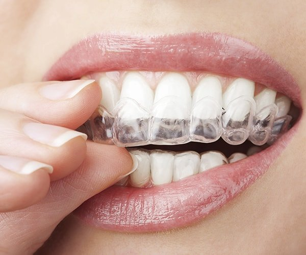 The invisalign clear aligners fitted over teeth