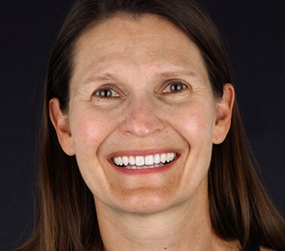 Profile picture of Anne, an Invisalign patient in Fargo, ND