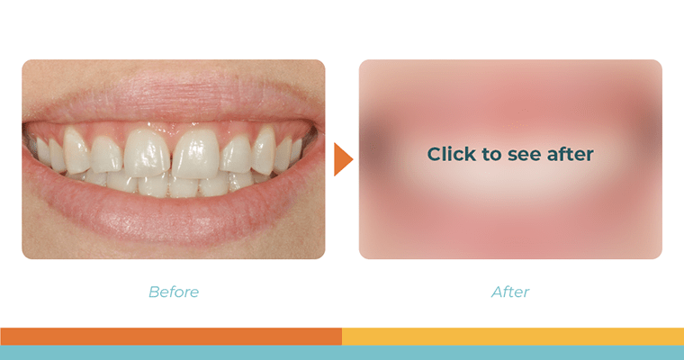 """Dental bonding before and after with the after blurred out and text """"click to see after"""""""