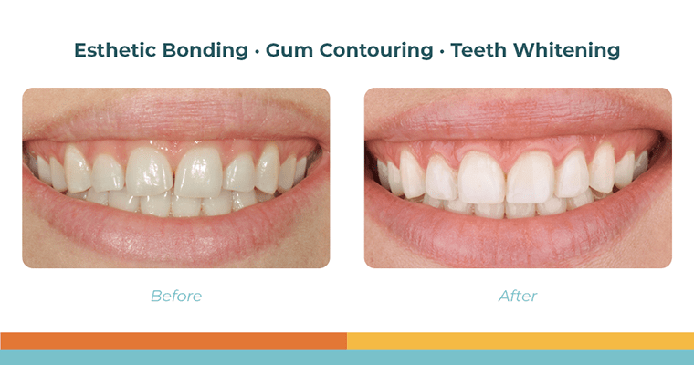 Katie's before and after of Esthetic Bonding · Gum Contouring · Teeth Whitening