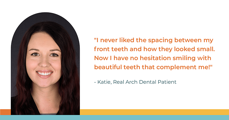 """""""I never liked the spacing between my front teeth and how they looked small. Now I have no hesitation smiling with beautiful teeth that complement me!"""" - Katie, Real Arch Dental Patient"""
