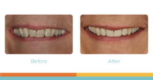 Before-and-after Invisalign photos of Deb's smile