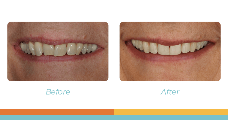 How Invisalign Fixed Deb's Smile After Years of Teeth Grinding